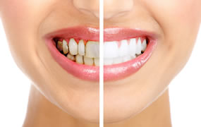 laser teeth whitening in milton