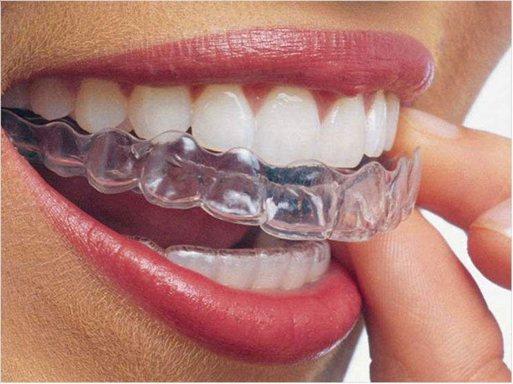 invisible braces treatment in milton