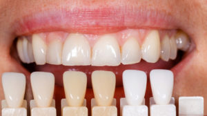 Porcelain Dental Veneers in Milton