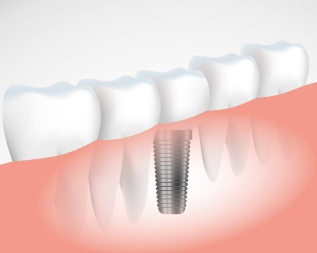 Dental Implants in Milton