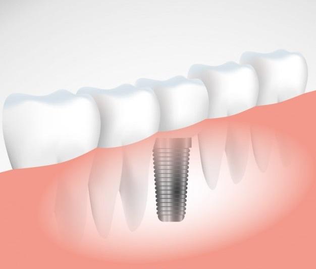Dental Implants in Milton
