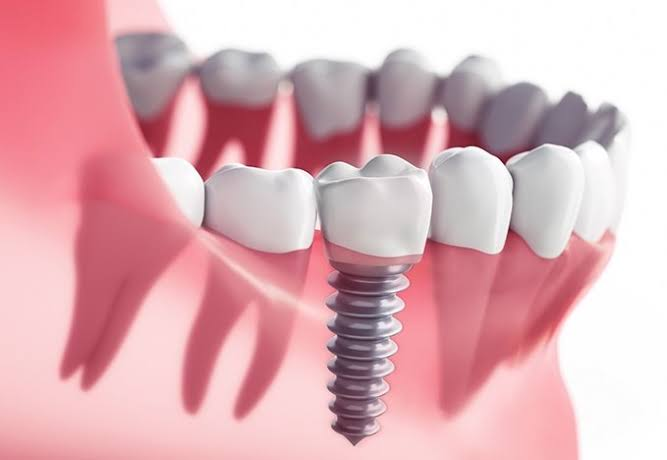 dental-implants-in-brampton