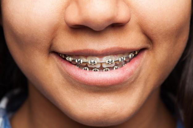 Orthodontic Treatments in Milton