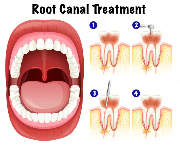 Root Canal Treatment Milton