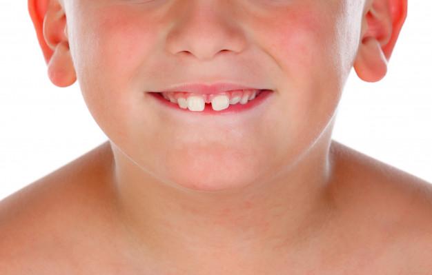 Dental Bonding Milton
