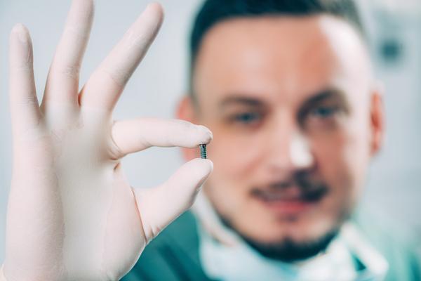 Dental Implants Milton