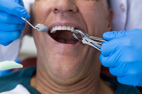 Tooth Extraction Milton Ontario