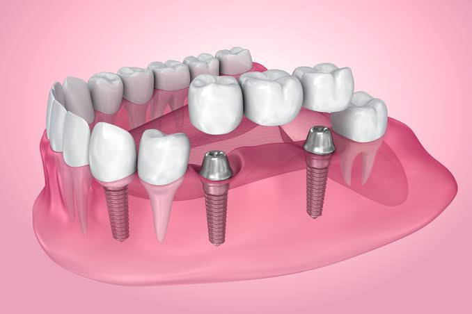 dental-implants-in-brampton